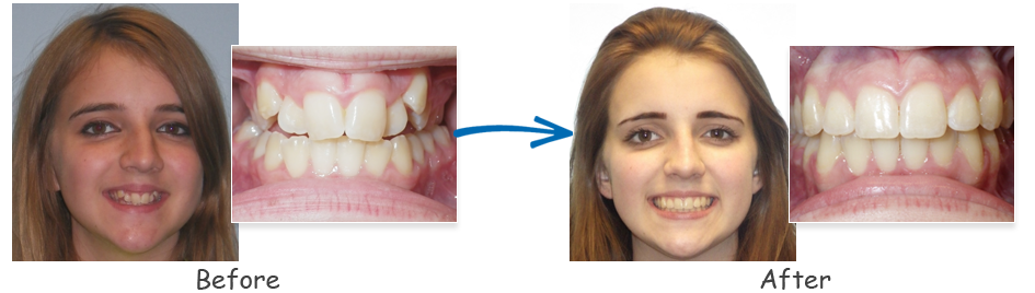 borello ortho before & after crossbite 1