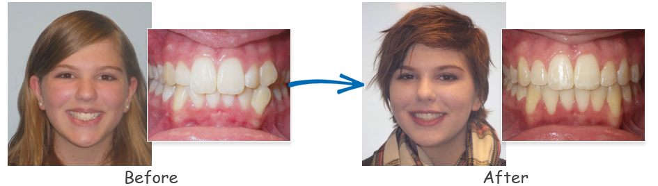 borello ortho before & after crowding 1
