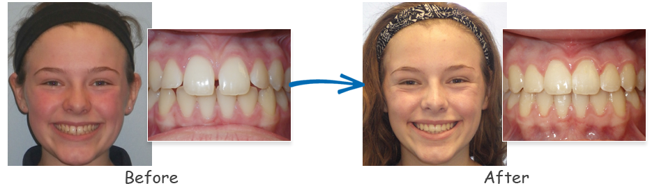 borello ortho before & after spacing 1