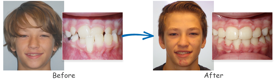 borello ortho before & after underbite 1