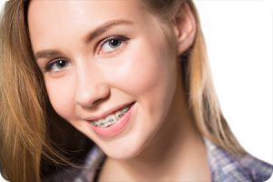 lake st louis mo orthodontist do braces cause white spots