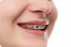 lake st louis mo orthodontist how much do braces cost