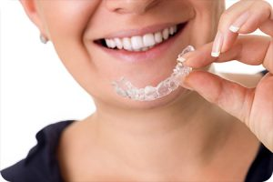 sunset hills mo orthodontist invisalign faq