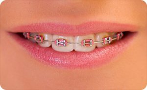 kirkwood mo orthodontist healthy teeth braces