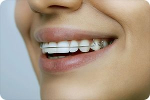 o fallon mo orthodontist retainer care