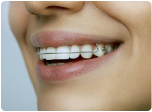retainers included at borello orthodontics