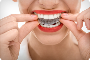 S T Louis M O Orthodontist Offers Tips For Preventing Tooth Decay