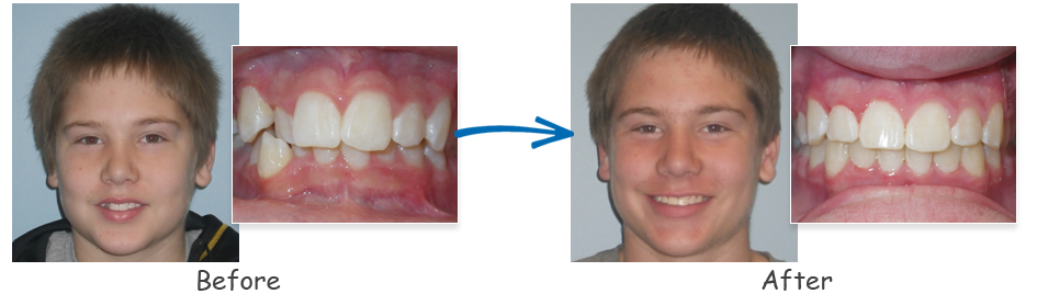 borello ortho before & after crowding 3