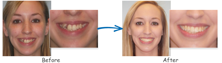 borello ortho before & after crowding 5