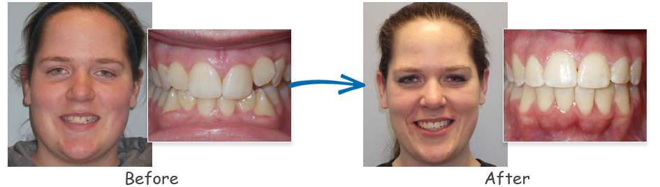 borello ortho before & after crowding 6