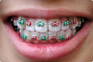 webster groves mo orthodontist what does your braces rubber band color say about you
