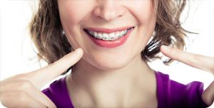 o fallon mo orthodontist braces myths