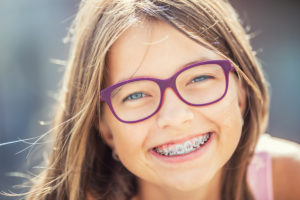 braces webster groves