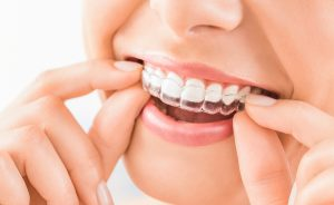 expert-for-invisalign-in-kirkwood-for-children